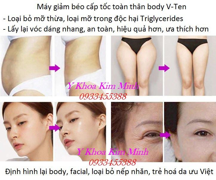 Kết quả trước và sau điều trị bằng máy giảm béo RF V-Ten bán tại Tp Hồ Chí Minh - Y Khoa Kim Minh