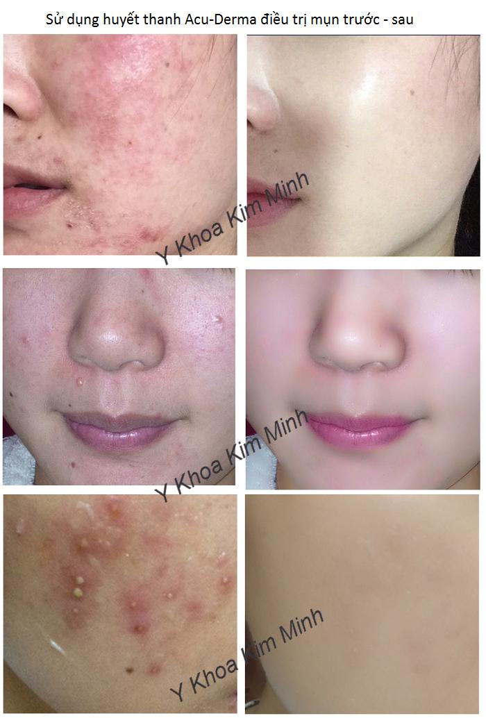 Kết quả điều trị mụn, da viêm mụn, dị ứng kích thích bằng huyết thanh Acu Derma BHA - Y khoa Kim Minh