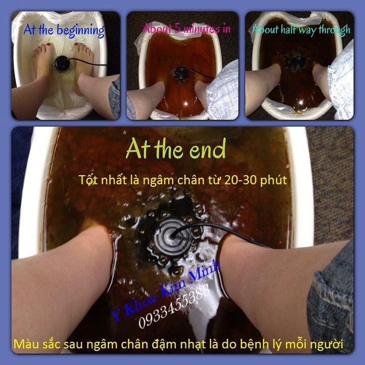 Kết quả trước và sau khi ngâm chân loại bỏ độc tố bằng máy ion KM-805C - Y Khoa Kim Minh