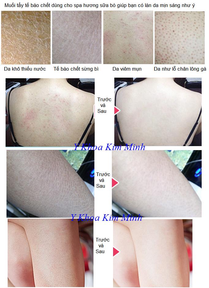 Kết quả sau sử dụng muối tắm milk spa dùng tẩy tế bào chết body - Y khoa Kim Minh