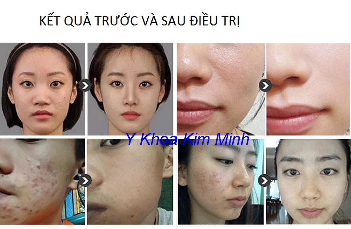 Kết quả điều trị da mặt trước và sau bằng máy Aqua Sure H2 - Y Khoa Kim Minh
