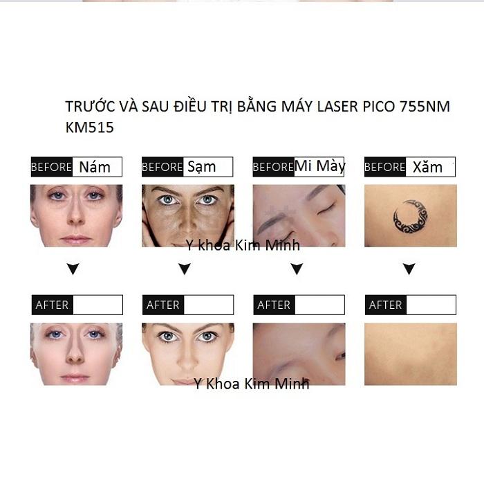 Kết quả điều trị bằng máy laser pico 755nm KM-515 - Y khoa Kim Minh