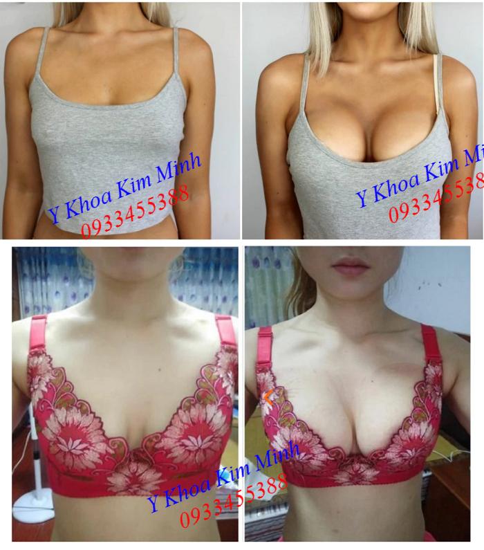 Kết quả hút to ngực bằng máy hút massage nở ngực FX-24B - Y khoa Kim Minh
