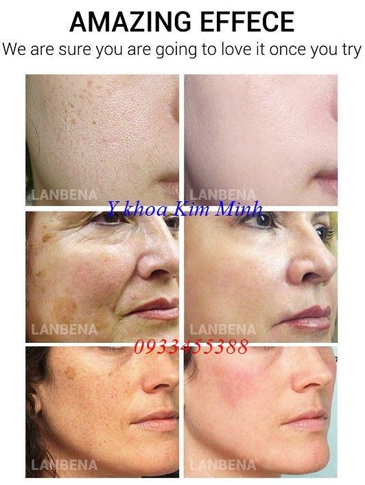 Kết quả trước và sau sử dụng mặt nạ dưỡng da Lanbena Mask - Y khoa Kim Minh