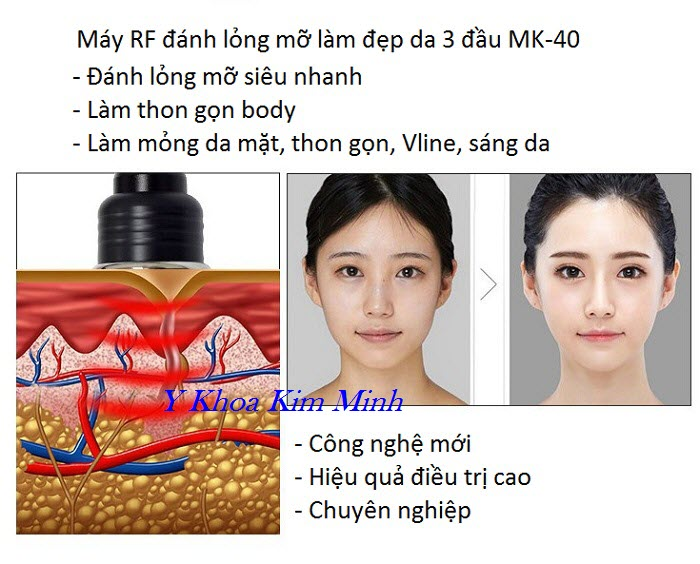 Máy làm thon gọn mặt giảm béo body chuyên dùng cho spa thẩm mỹ viện RF MK-40 - Y khoa Kim Minh