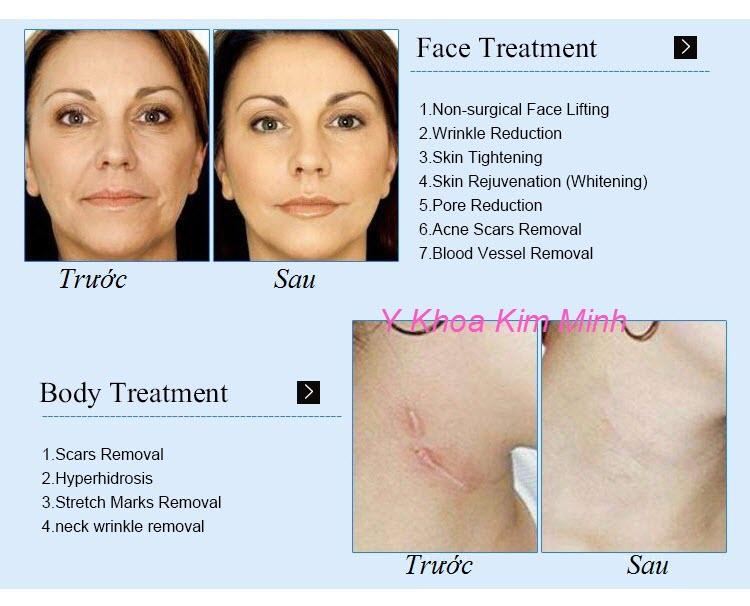 Trước và sau điều trị với máy trẻ hoá da vi điểm RF - Y Khoa Kim Minh