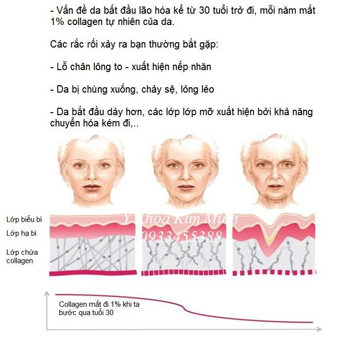 Noi ban may dieu tri da lao hoa chay se RF 3D KL-99 - Y khoa Kim Minh