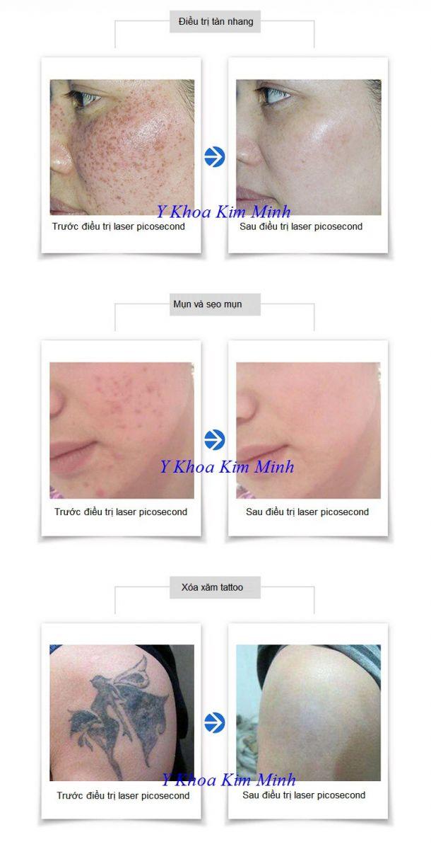 Máy điều trị nám laser picosecond 755nm trị nám trẻ hóa da - Y khoa Kim Minh 0933455388