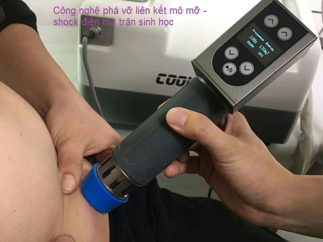 Liệu pháp phá liên kết mỡ bằng shock điện sinh học ma trận coolwave - Y khoa Kim Minh