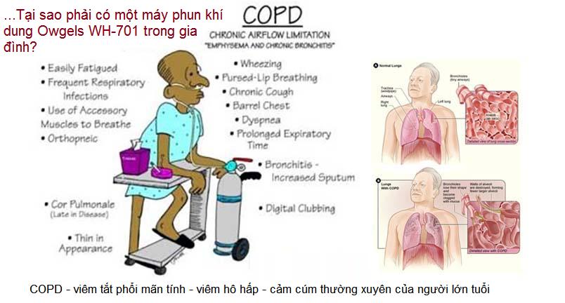 Mua máy phun khí dung Owgels WH-701 của Đức là cách giữ sức khỏe mọi người trong gia đình - Y khoa Kim Minh 0933455388