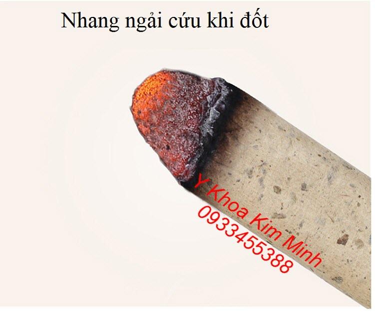Nhang ngai cuu chua benh dau co xuong khop, viem khop goi rat hieu qua - Y khoa Kim Minh