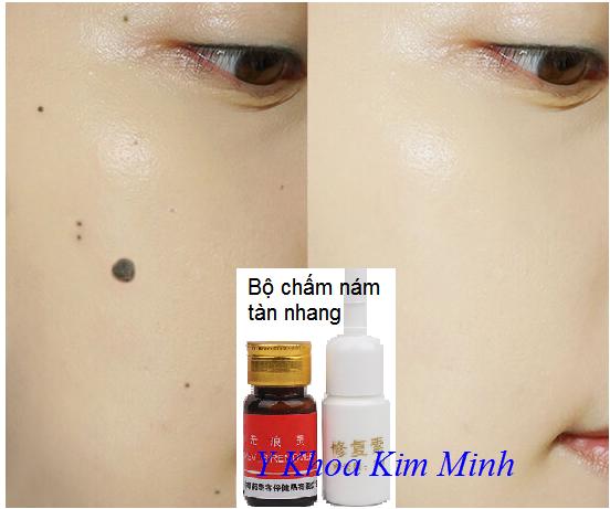 Bộ tẩy tàn nhang xóa nám nốt ruồi bán tại Y khoa Kim Minh