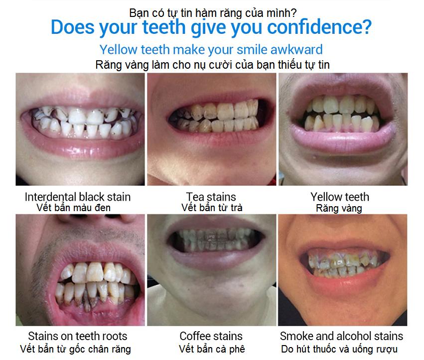Thuốc làm trắng răng Lanbena Teeth Withening Essence - Y khoa Kim Minh 0933455388