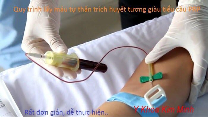 Qui trinh trich xuat huyet tuong giau tieu cau PRP tai tao tre hoa da, dieu tri seo - Y khoa Kim Minh
