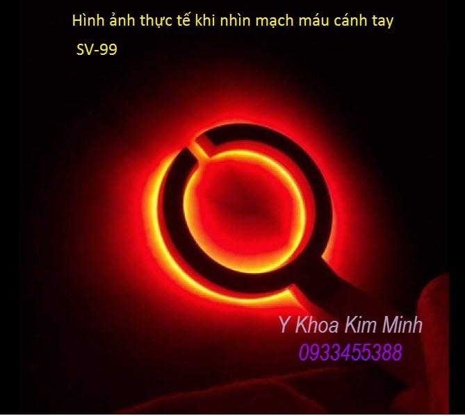 Den chieu canh tay tim vien tinh mach - Y khoa Kim Minh