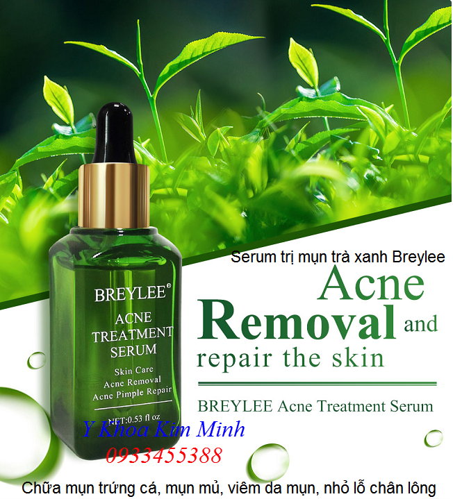 Huyết thanh mụn hiệu quả Breylee Acne Treatment serum - Y khoa Kim Minh 0933455388