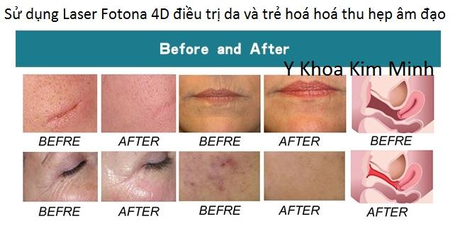 Sử dụng Laser Fotona 4D điều trị da và trẻ hoá da âm đạo - Y khoa Kim Minh