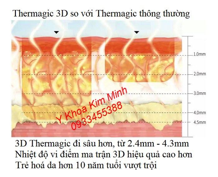 Công nghệ trẻ hoá da vi điểm ma trận 3D FLX toả ra vượt trội hơn so với Thermagic thông thường - Y Khoa Kim Minh