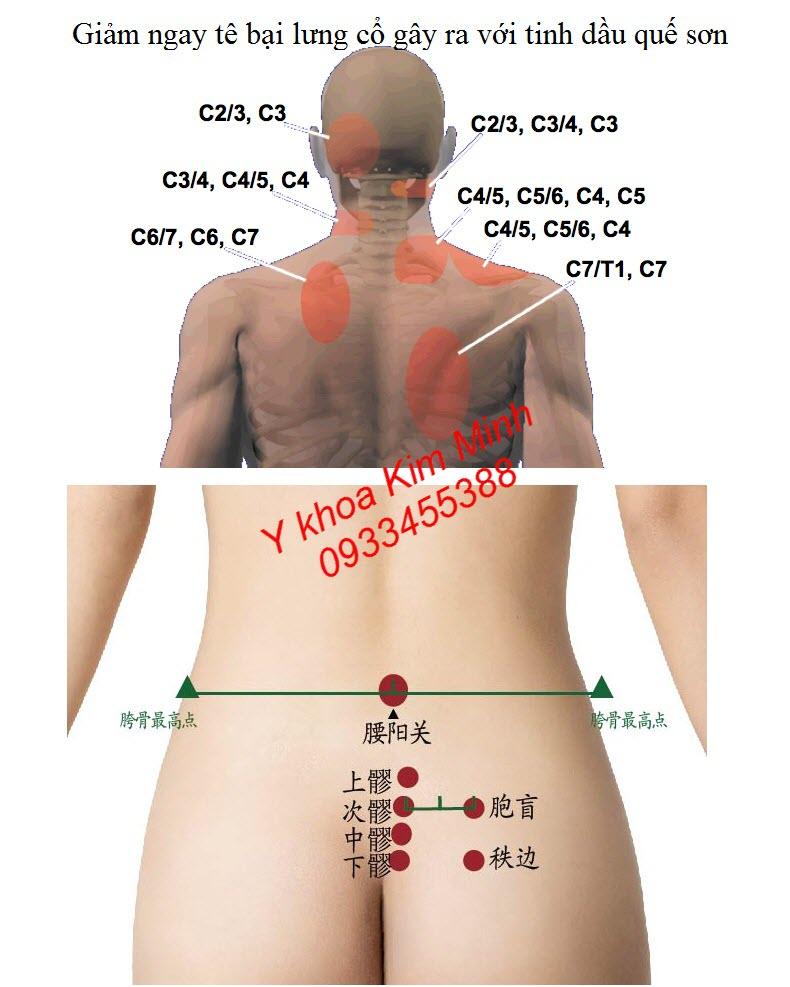 Dùng tinh dầu quế sơn bôi xoa bóp cột sống lưng cổ giúp chữa chứng tê bại cổ vai gáy, liệt chân do bệnh thần kinh toạ gây ra - Y khoa Kim Minh