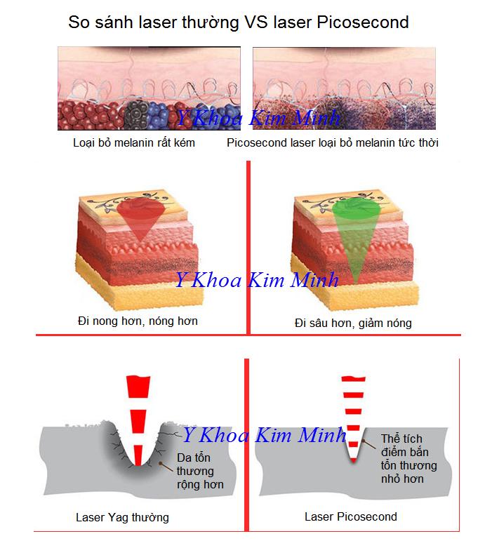 So sánh tính năng của laser yag và laser điều trị sắc tố da picosecond 755nm - Y Khoa Kim Minh