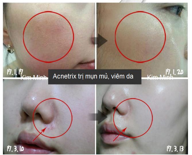 Điều trị mụn mủ, da viêm mụn bằng huyết thanh Acnetrix Ampoule trước và sau - Y Khoa Kim Minh 0933455388