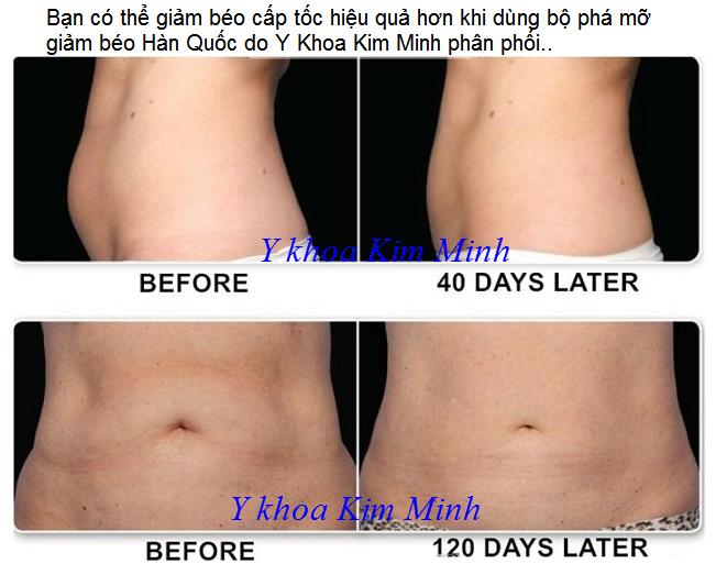 Trướ và sau khi dùng máy giảm béo và điêu khắc body V-Nine Velashap - Y khoa Kim Minh