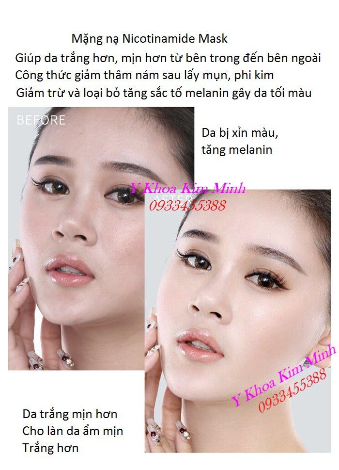 Kết quả trước và sau đắp mặt nạ Nicotinamide giúp da trắng mịn hơn, ẩm hơn - Y Khoa Kim Minh