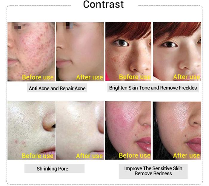 Kết quả sau khi lăn kim EGF điều trị da tổn thương - Y Khoa Kim Minh
