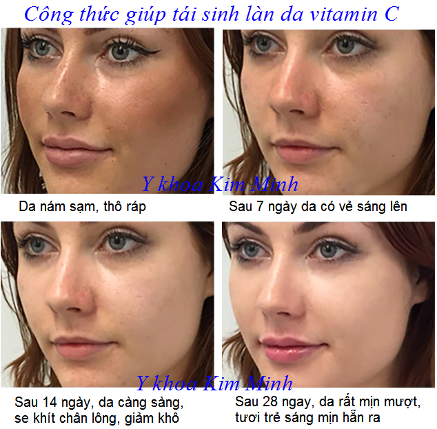 Cách tái tạo hồi sinh da, trắng sáng da bằng huyết thanh vitamin C Breylee - Y khoa Kim Minh