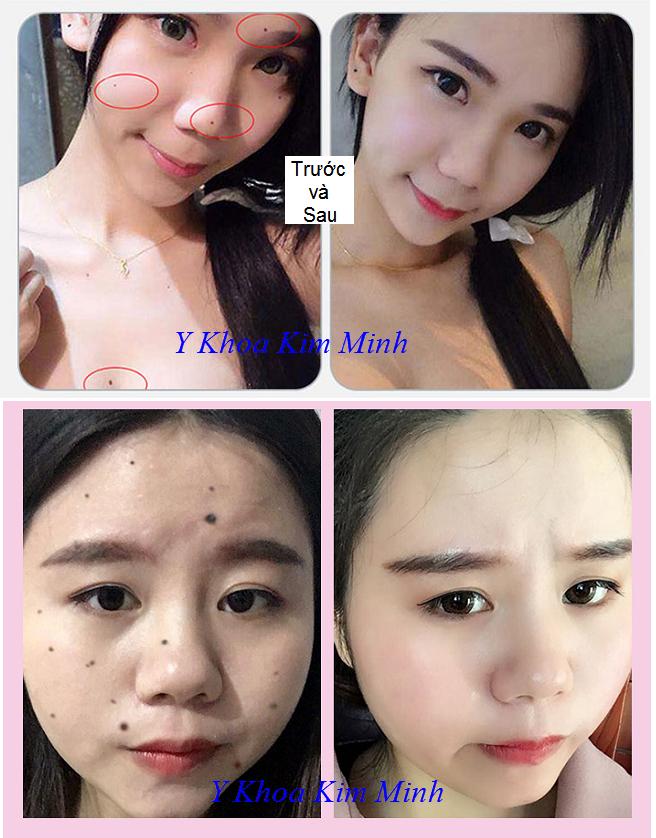 Hình ảnh trước và sau khi dùng bộ chấm nám tàn nhang - Y khoa Kim Minh