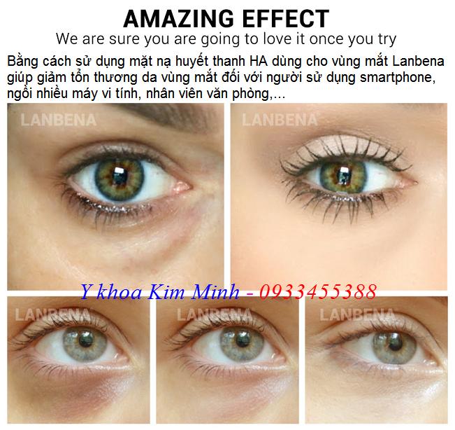 Chữa thâm và chữa bọng mắt bằng mặt nạ huyết thanh HA Lanbena - Y khoa Kim Minh